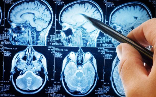 Neurologista da Unicamp fala sobre inovações em diagnóstico de doenças neurodegenerativas