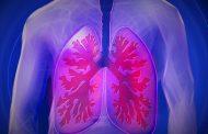 Combinação de medicamentos atua na causa da Fibrose Cística